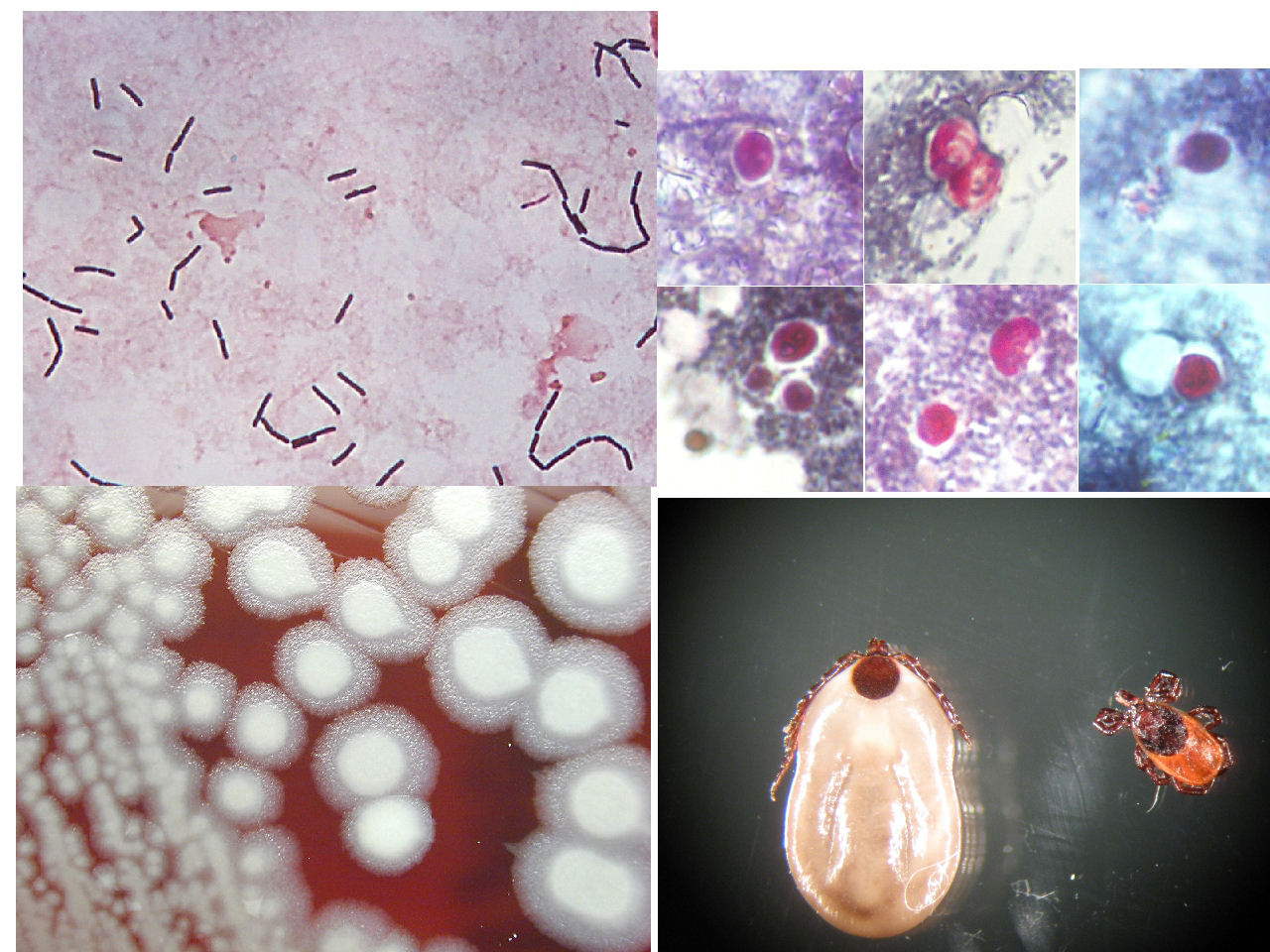 PEDIATRICS: GENERAL MEDICINE ARTICLES ON PARASITOLOGY